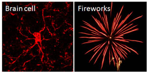 Read on to find out how you get a picture of a brain cell that looks like fireworks...